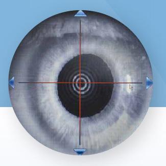 Pupillometrie