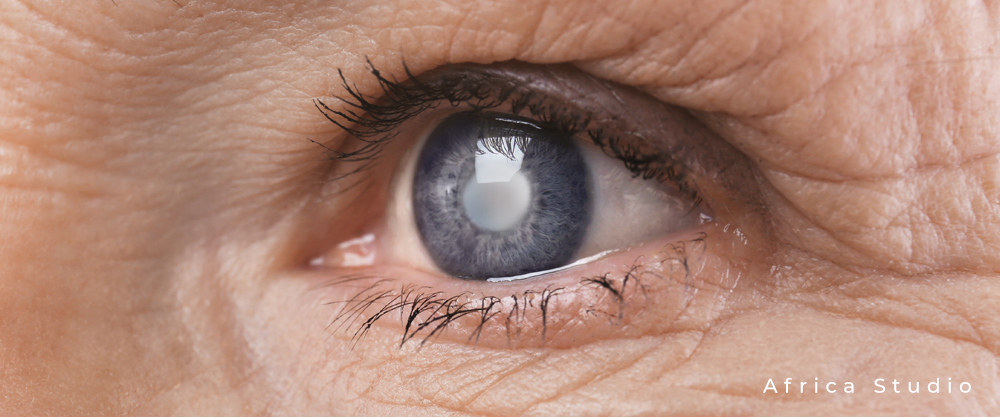 Ein vom Grauen Star betroffenes Auge mit blau-grauer Iris und weiß-gräulicher Pupille, umgeben von faltiger Haut